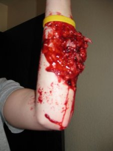 Forearm Flesh Wound