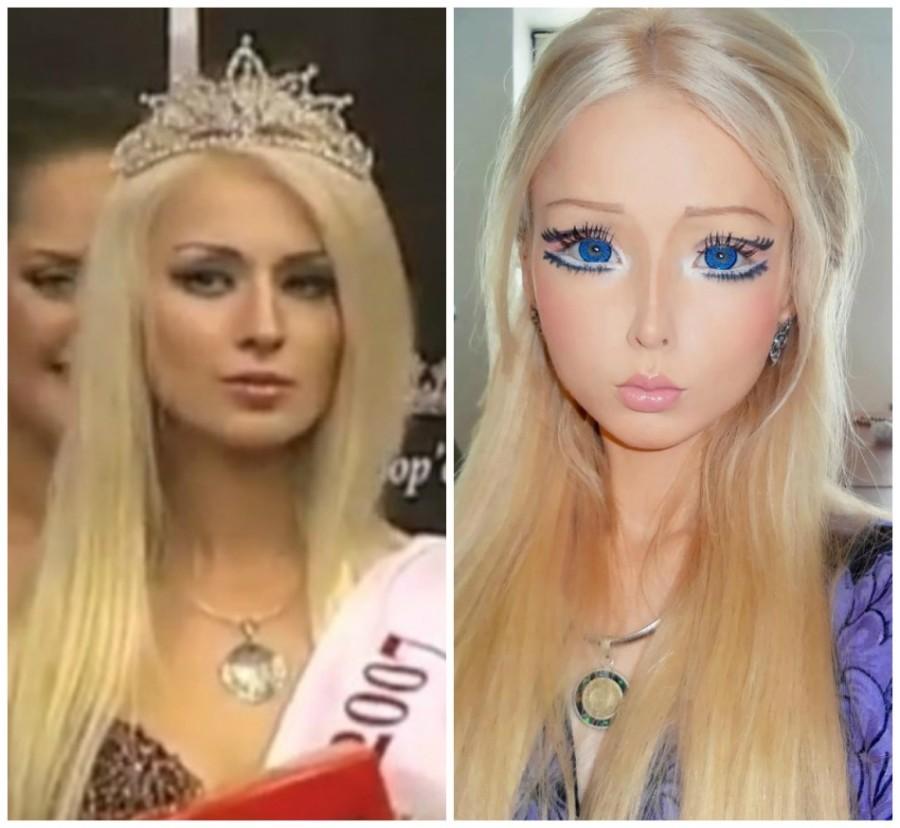 323815-photos-prove-valeria-lukyanova-s-plastic-surgery ...